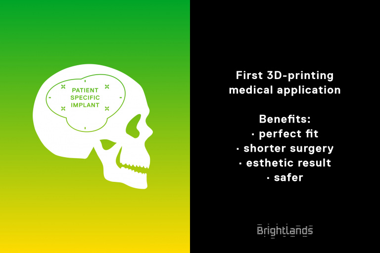 Illustratie 3D-geprinte medische implantaten voor Brightlands